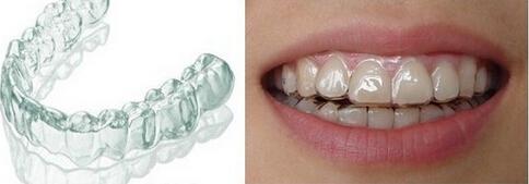 重庆牙齿整形多少钱_牙齿矫正_隐形矫正_牙齿正畸_重庆维乐口腔医院 - -重庆维乐口腔